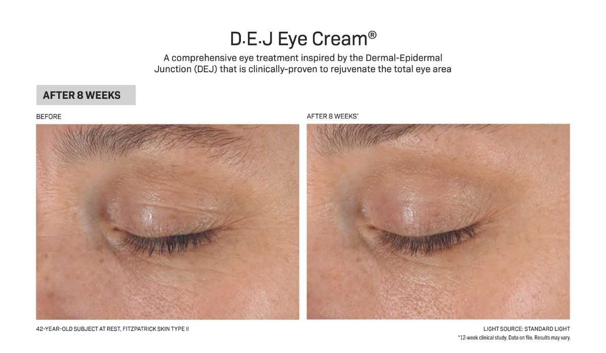 DEJ Eye Before and After image