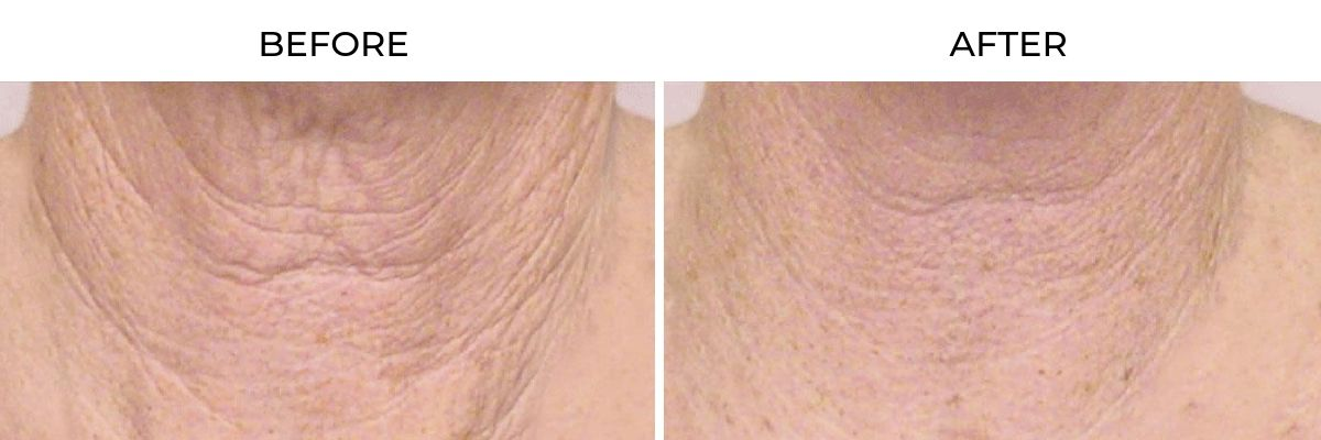 nectifirm-before-after-5