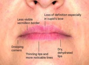 lip-aging
