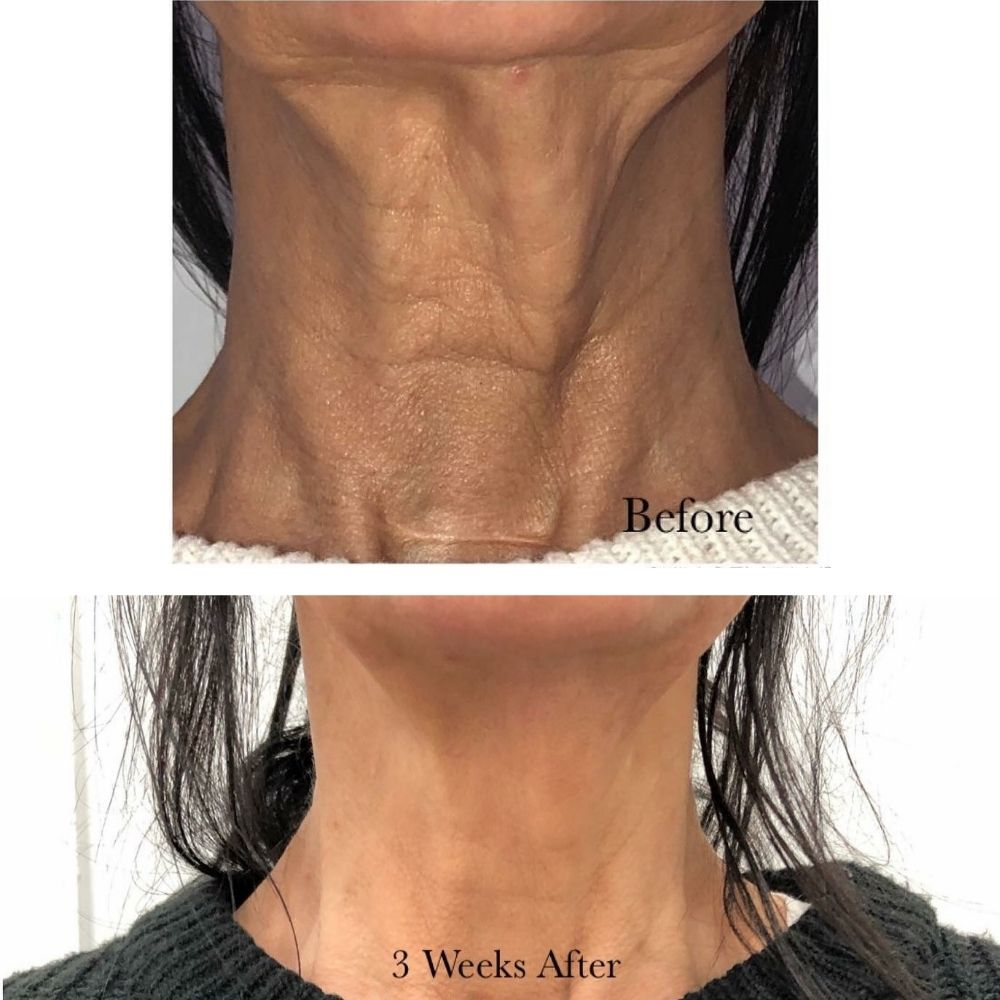 neck-before-and-after