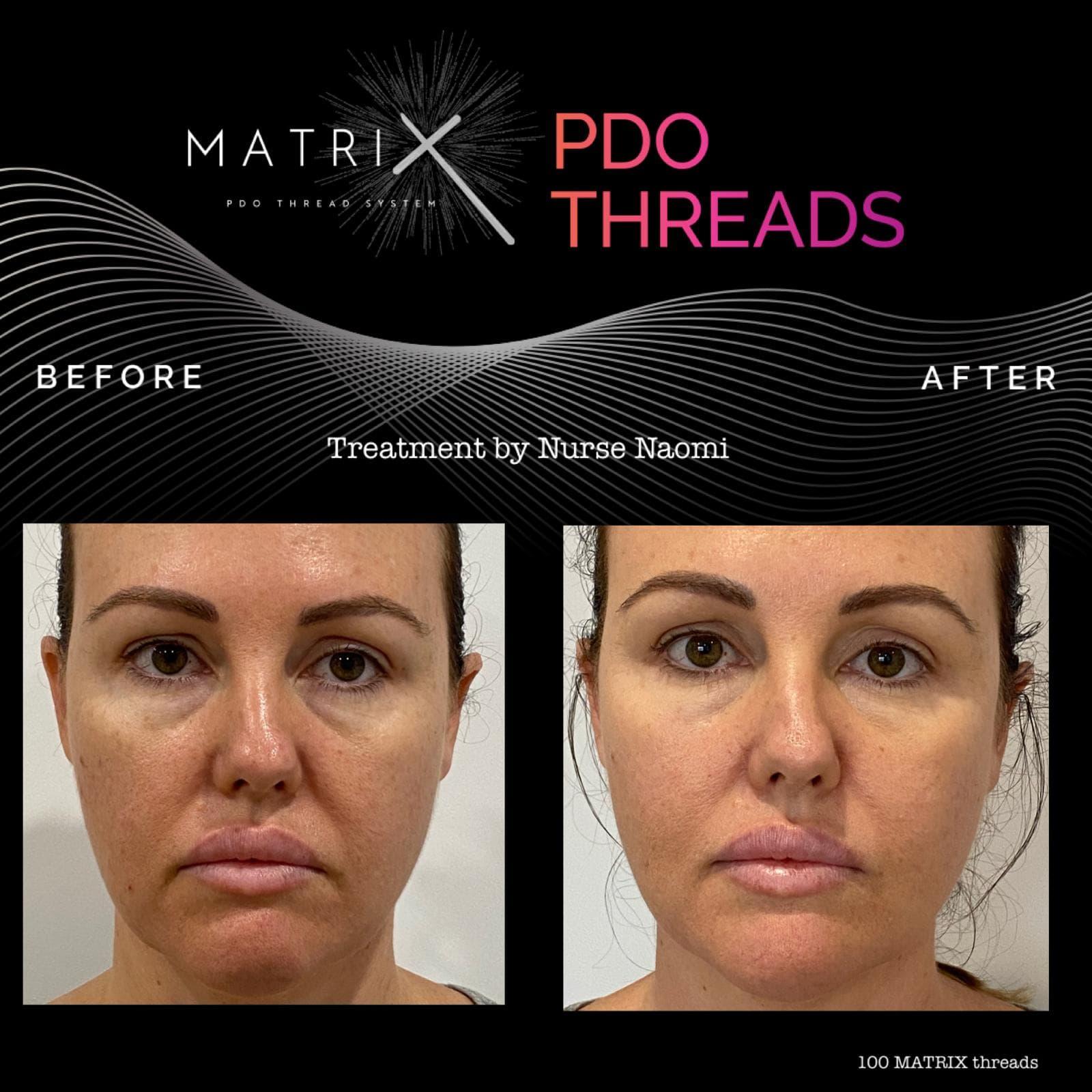 matrix-pdo-before-after-6
